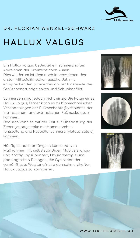 Behandlungsmöglichkeiten eines Hallux Valgus von Dr. Florian Wenzel-Schwarz